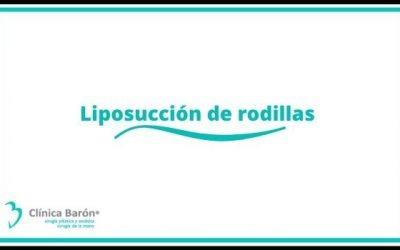 Liposucción de rodillas en Asturias: rejuvenece tus piernas